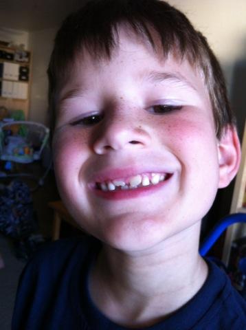 Losing teeth!